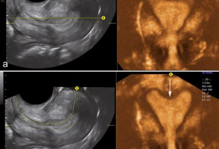 Preliminary experience with Advanced Volume Contrast Imaging (VCI) and Omniview in obstetric and gynecologic ultrasound